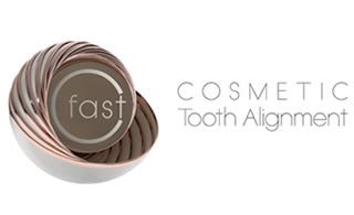 Cfast cosmetic braces