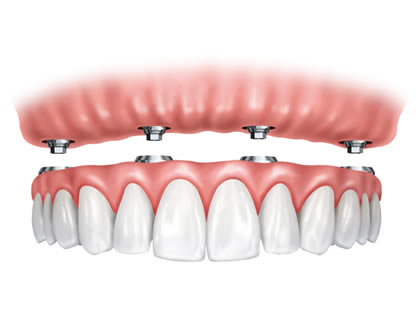 Dental Implants used to stabilise a denture