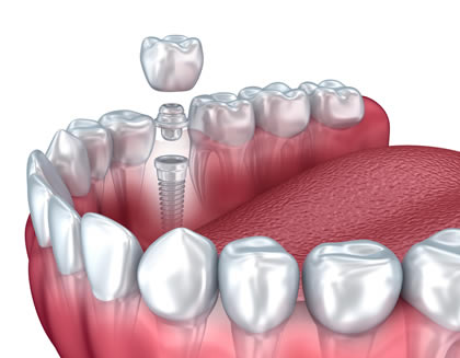 Dental Implant used to support single crown